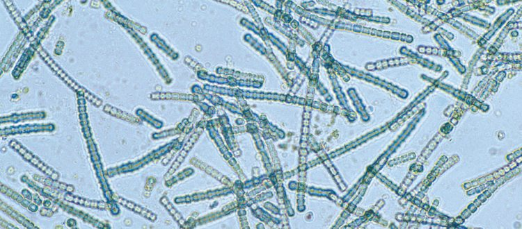 blue green algae microphotograph